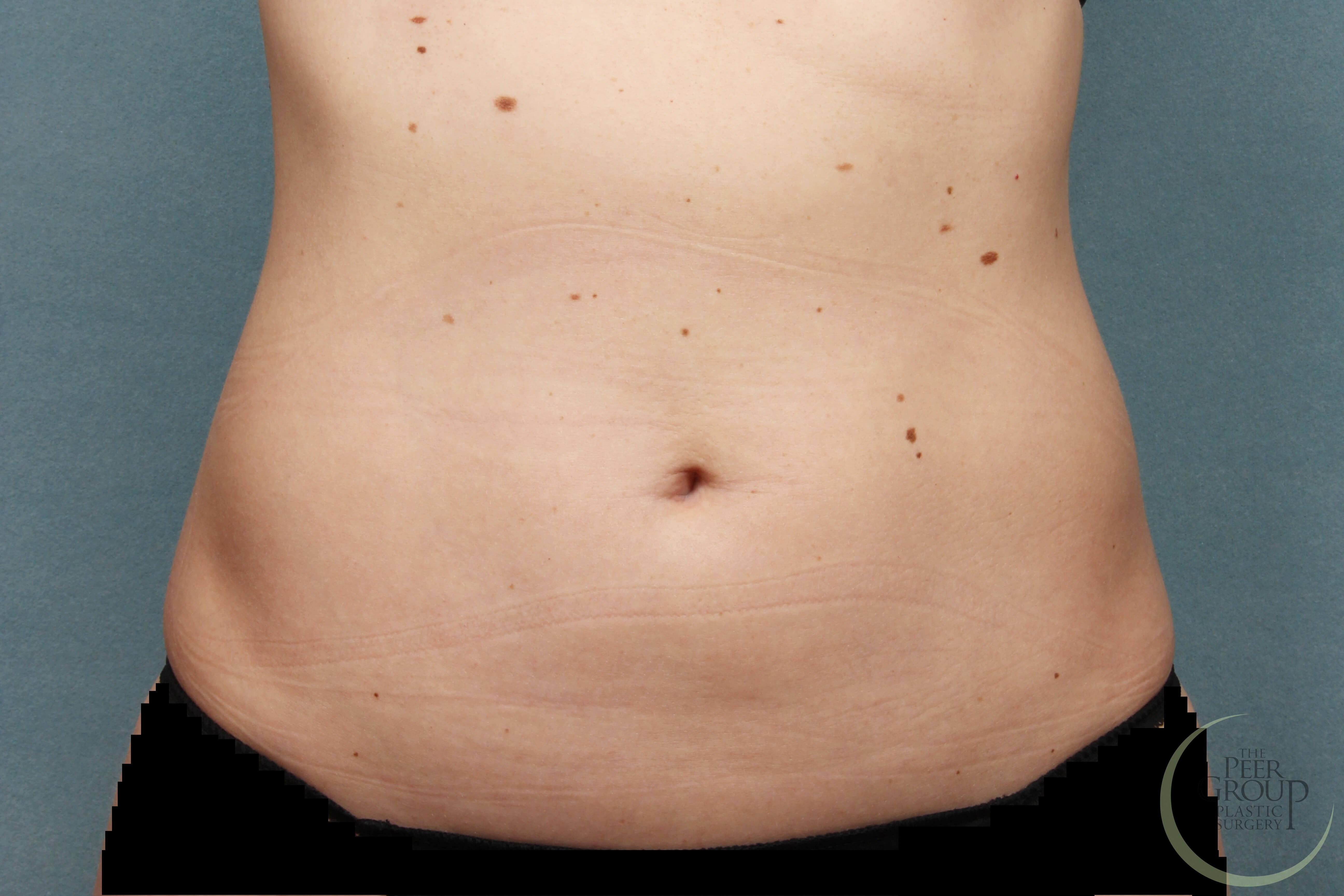CoolSculpting Fat Reduction NJ After