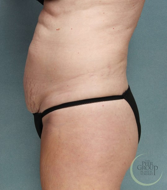 New Jersey SculpSure Before  SculpSure