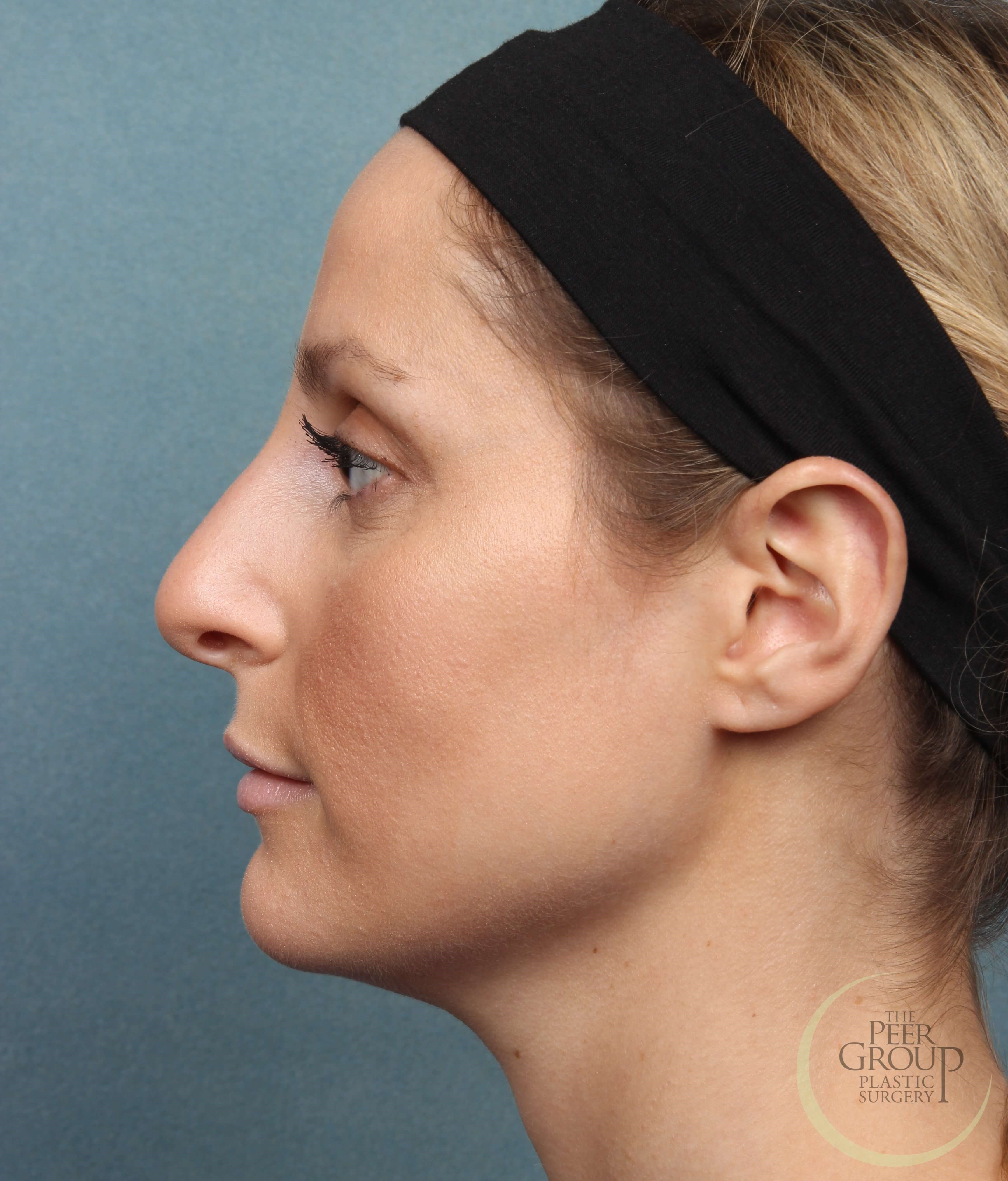 Non Surgical Rhinoplasty NJ After Juvederm Vollure