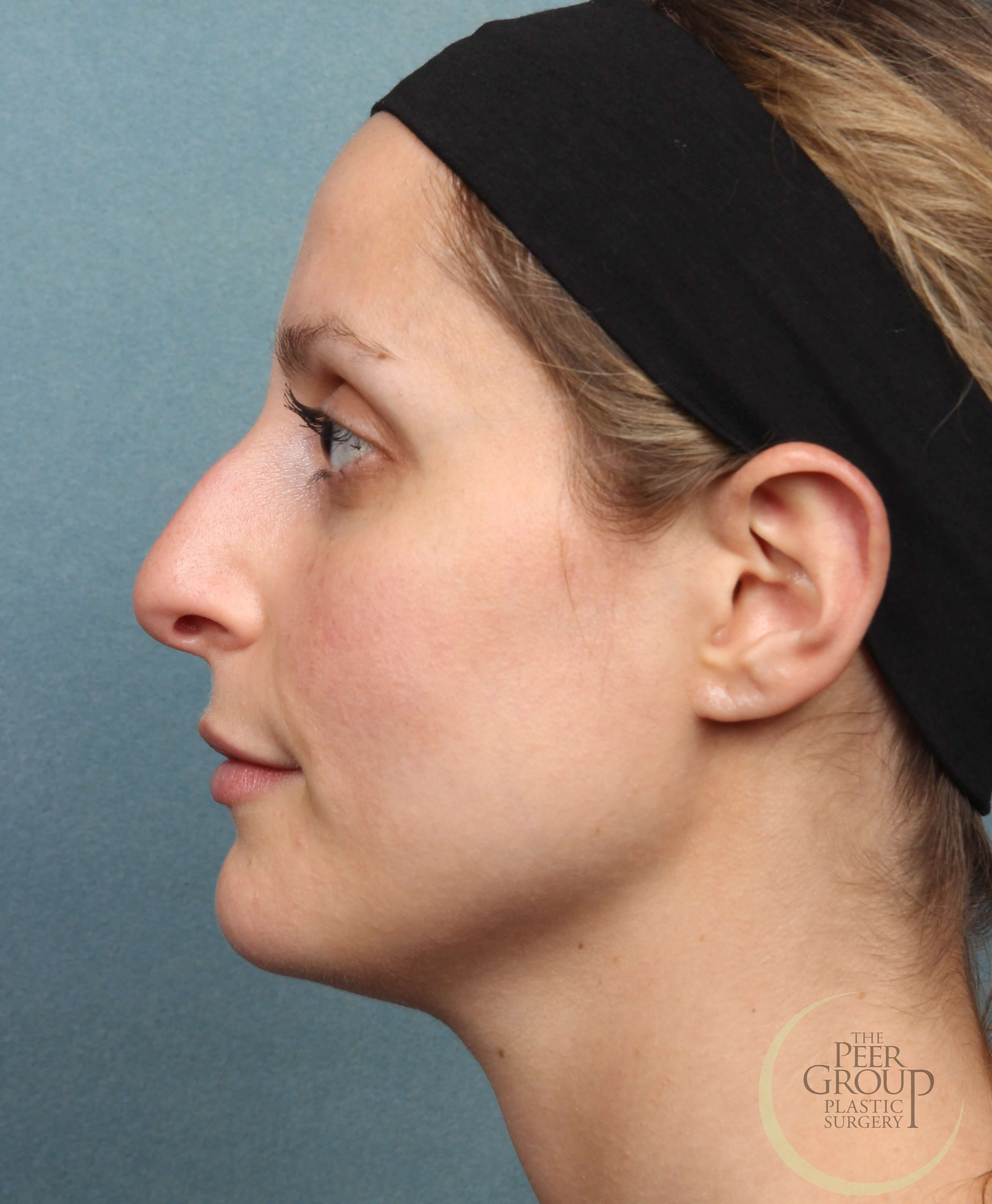 Non Surgical Rhinoplasty NJ Before Juvederm Vollure