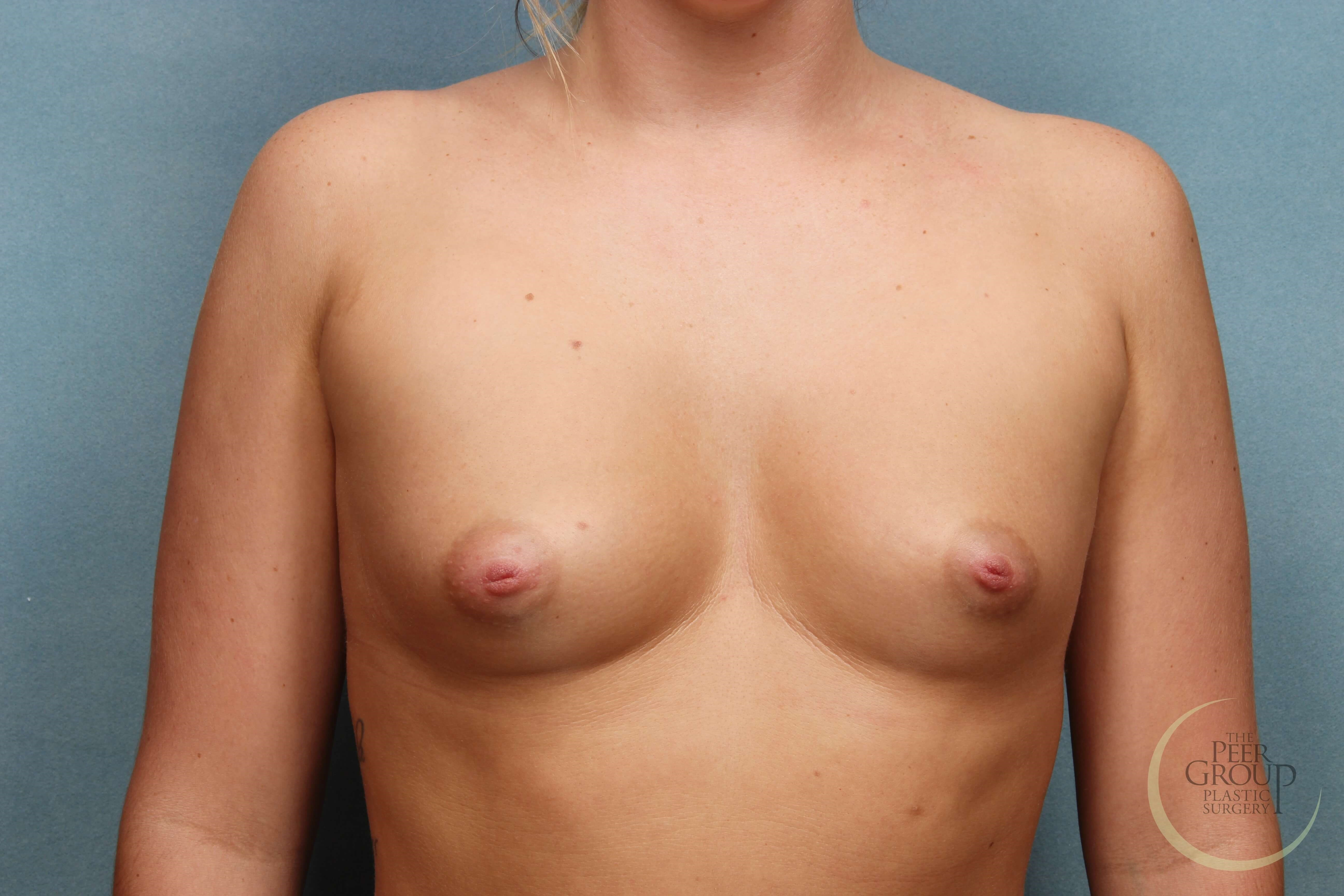 Breast Implants New Jersey Before