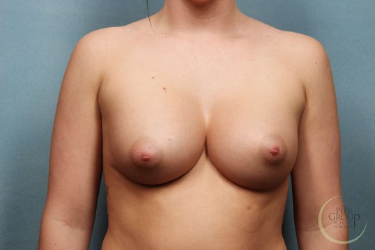 Breast Implants New Jersey After