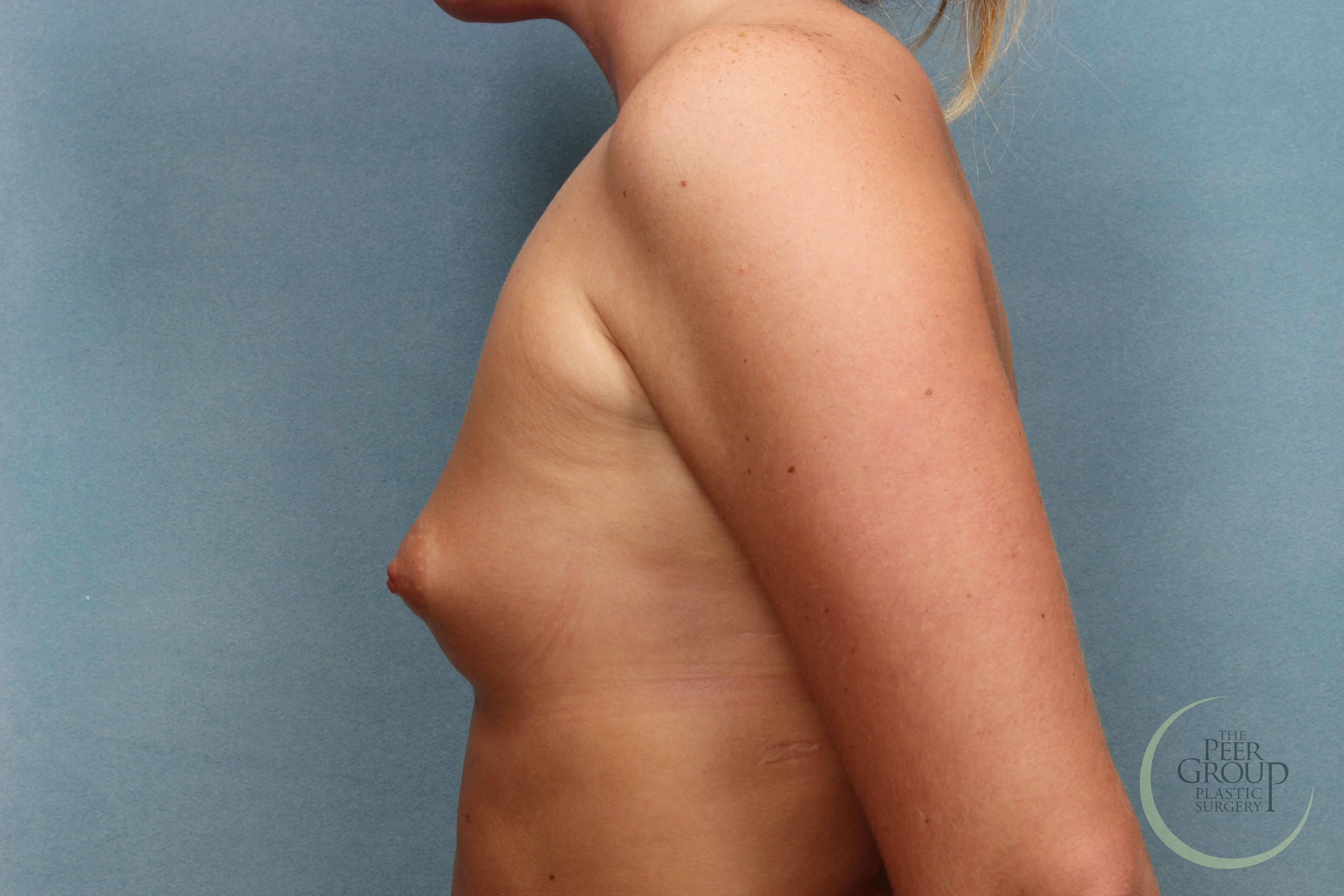 Breast Augmentation NJ Before