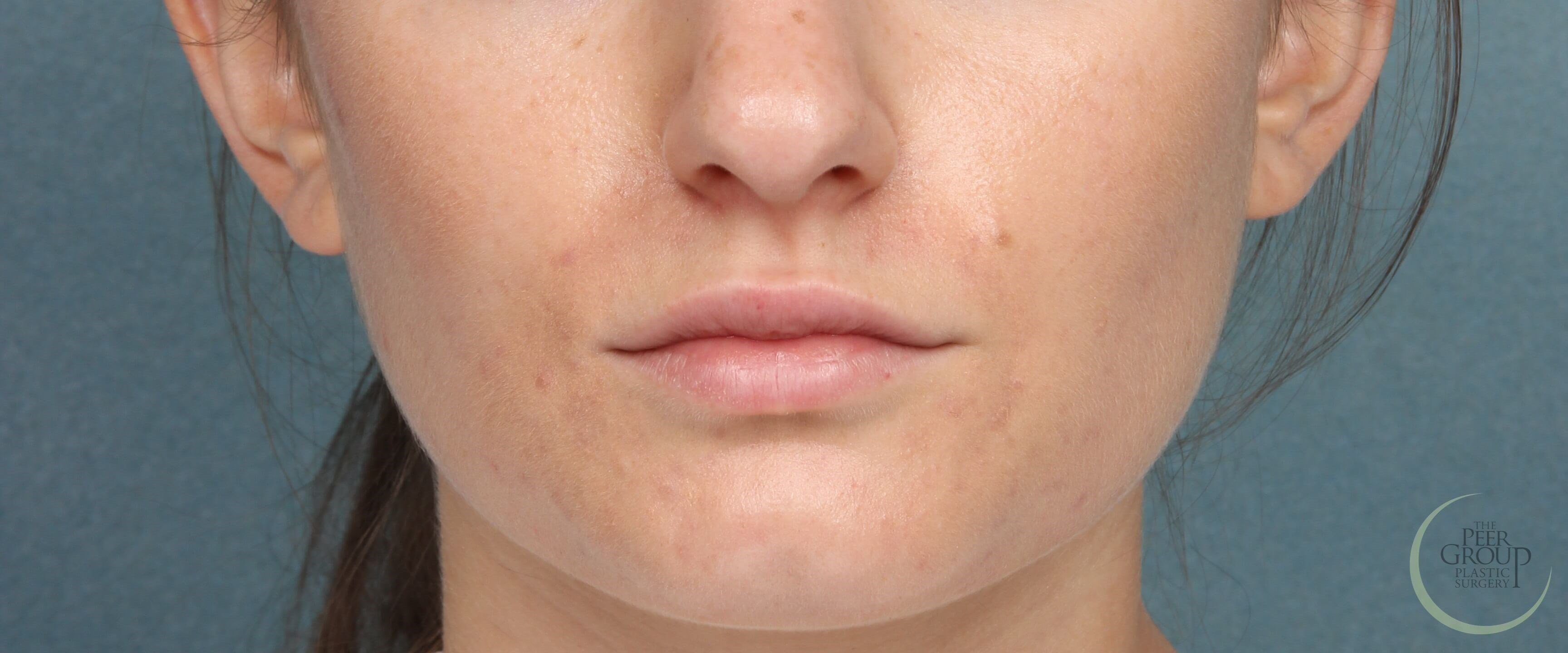 Fuller Lips with Juvederm Before Juvederm