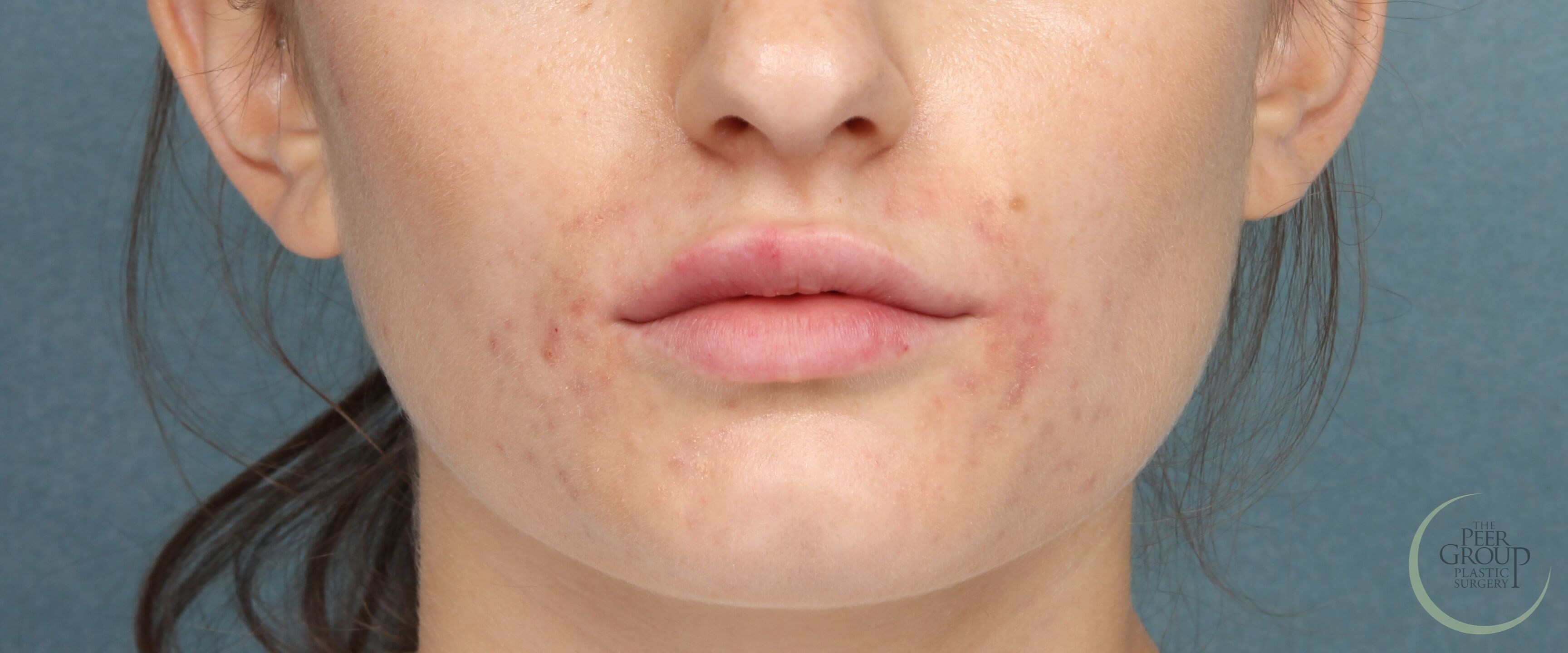 Fuller Lips with Juvederm Immediately After Juvederm