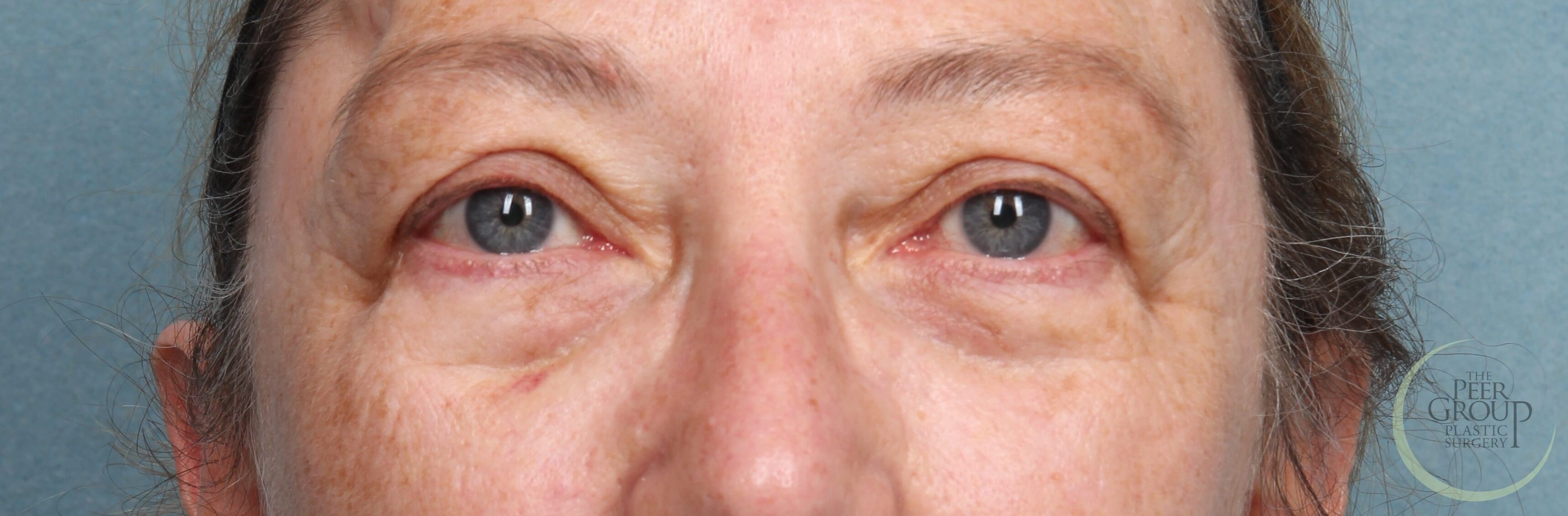 New Jersey Eyelid Lift Before Upper Eyelid Lift