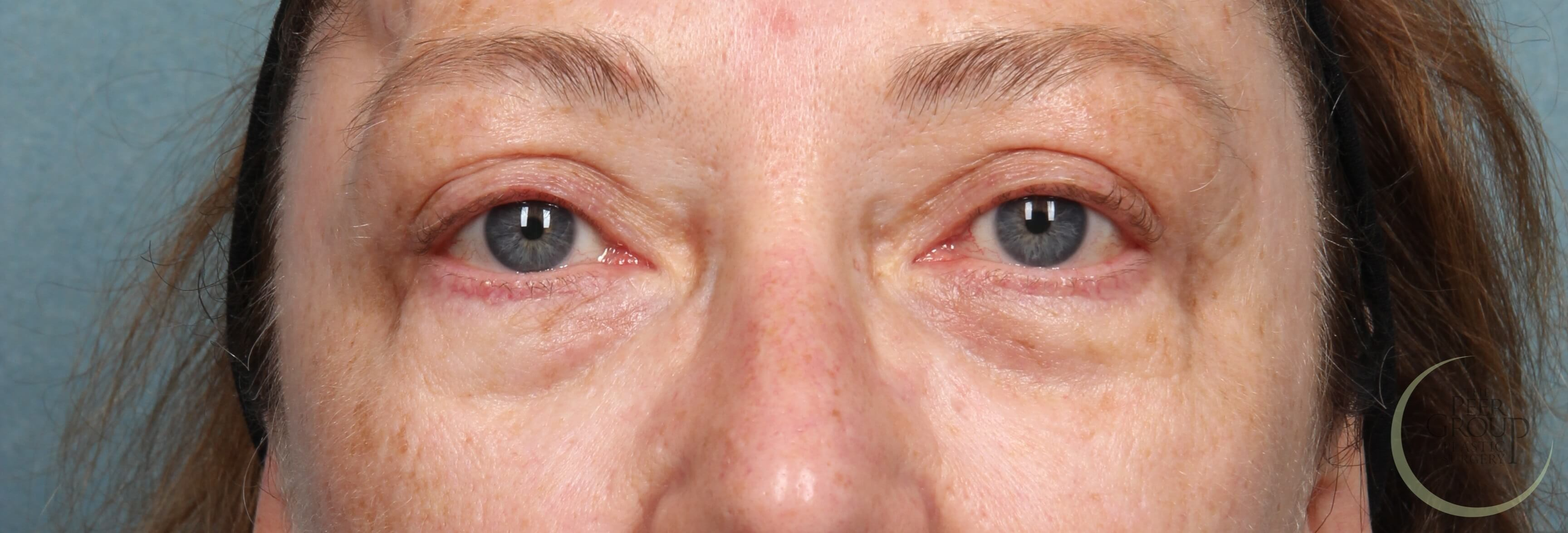 New Jersey Eyelid Lift After Upper Eyelid Lift