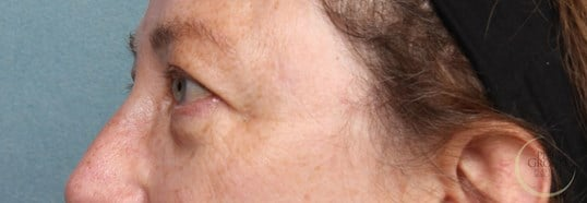 Upper Eyelid Lift NJ Before Eyelid Lift