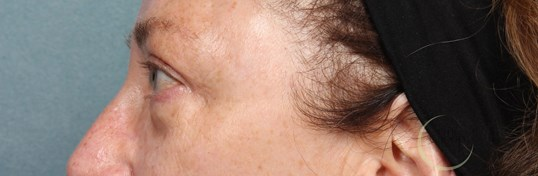Upper Eyelid Lift NJ After Eyelid Lift