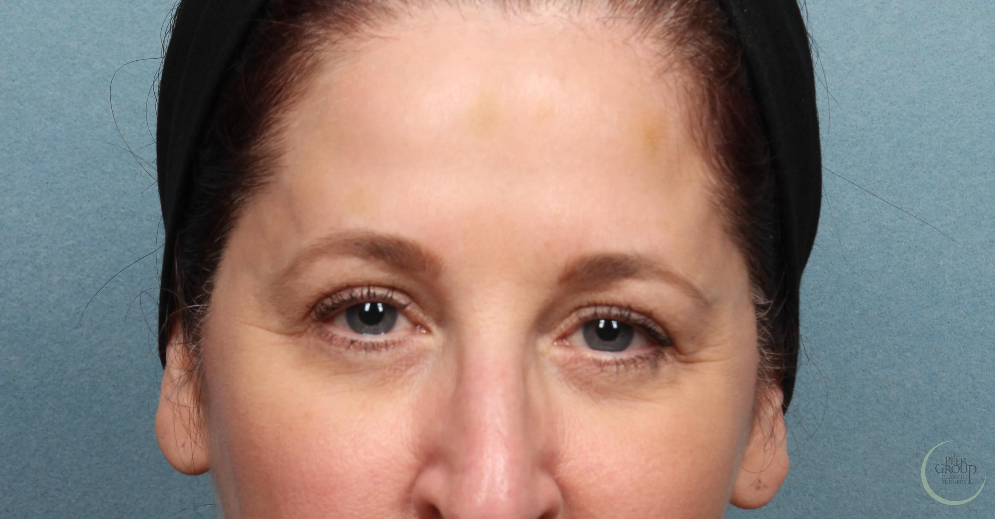 New Jersey Botox After Botox