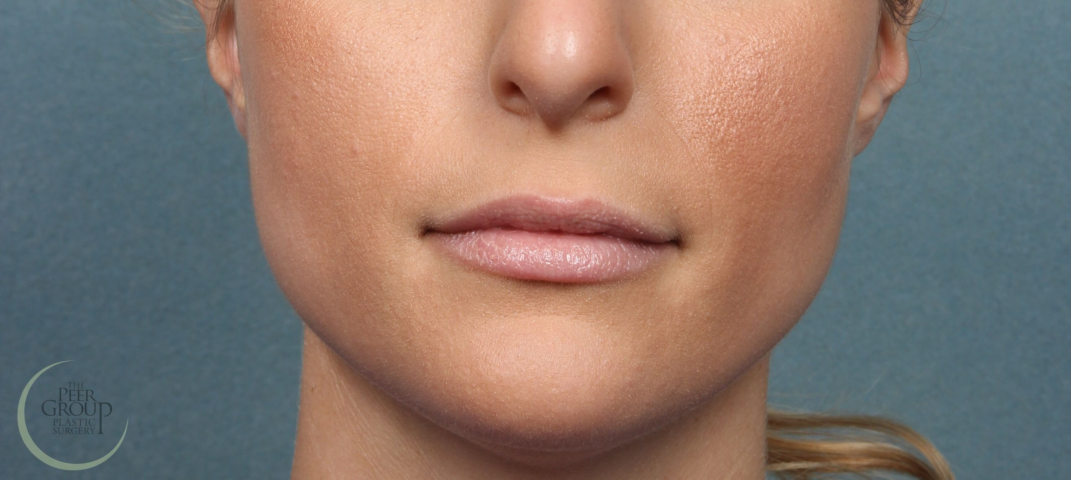 NJ Lip Augmenation with Filler Before Juvederm