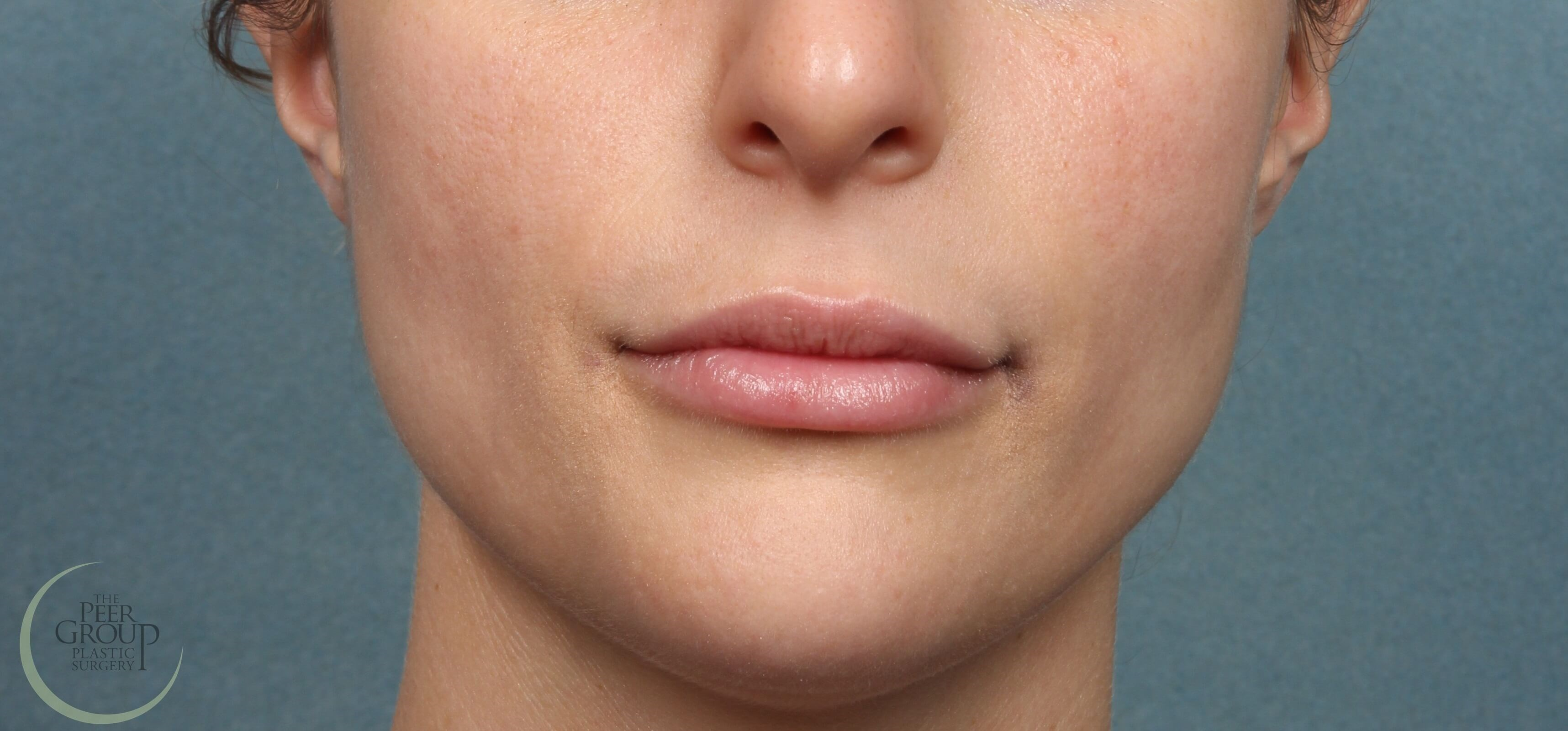 NJ Lip Augmenation with Filler 1 Week After Juvederm