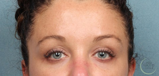 Botox New Jersey 1 Week After Botox