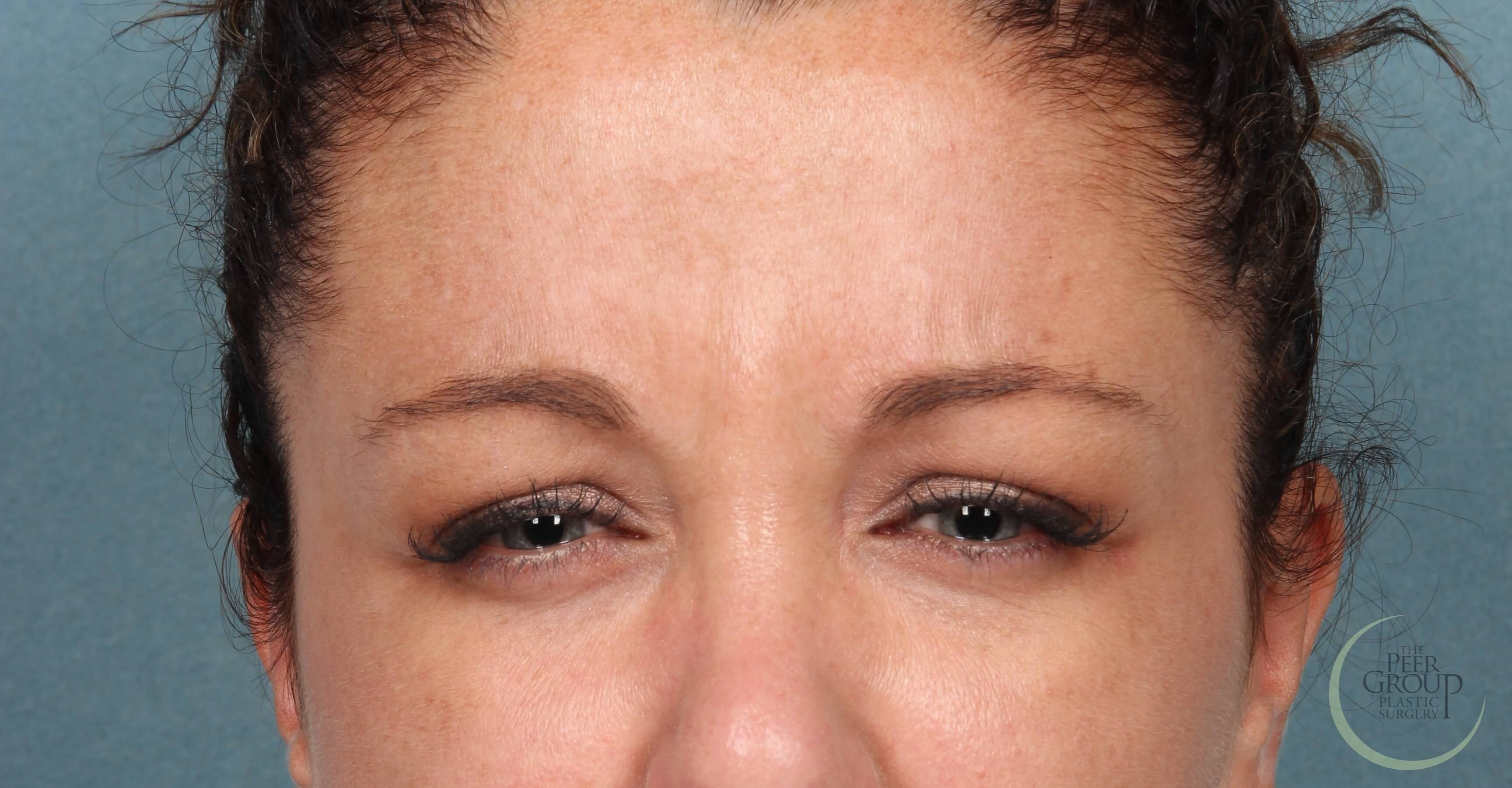NJ Botox Before Botox