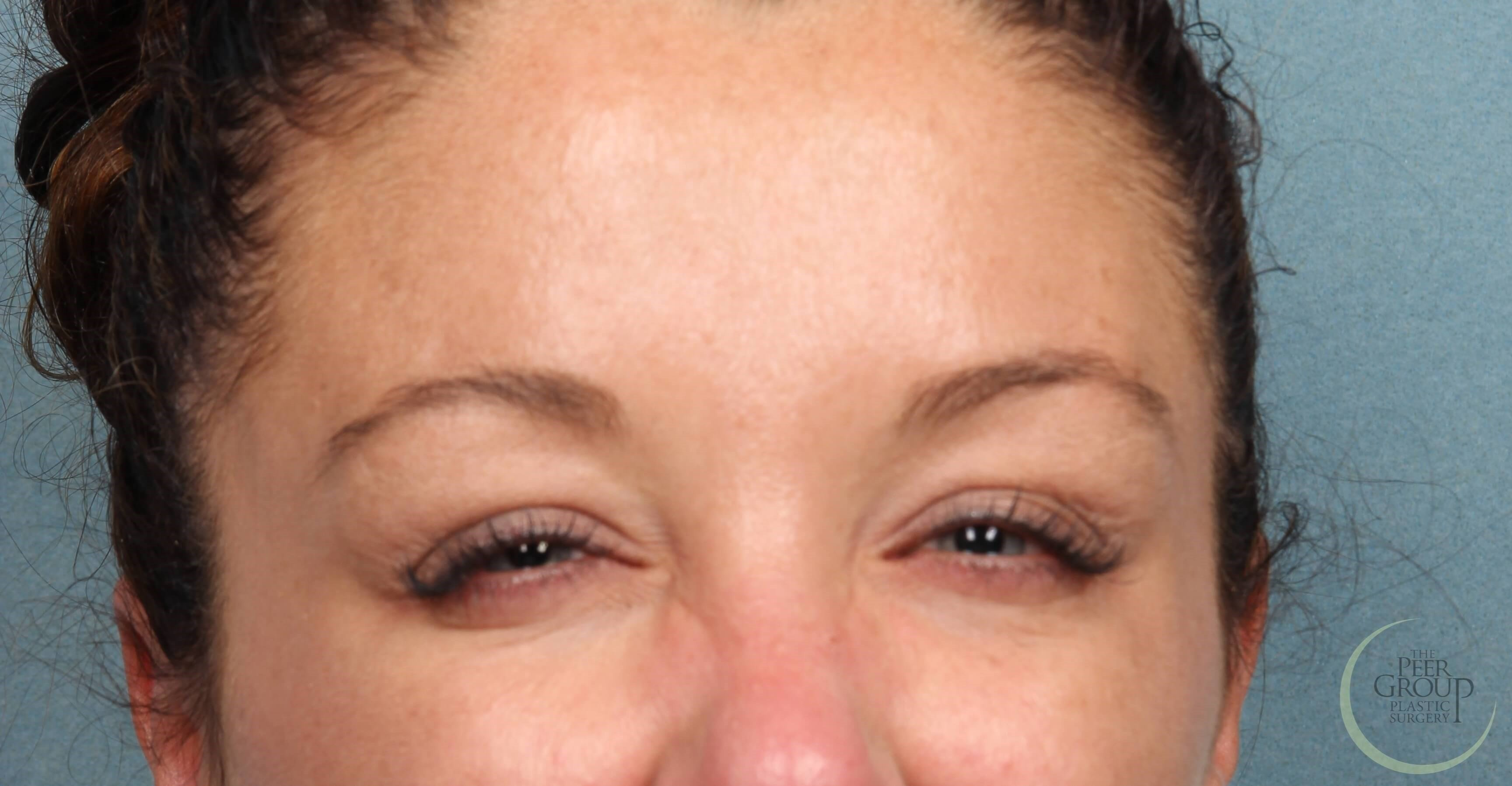 NJ Botox 1 Week After Botox