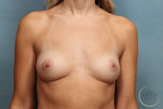 New Jersey Breast Implants Before