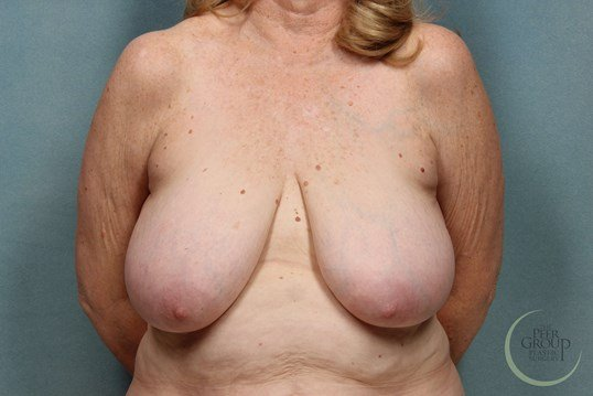 Breast Reduction NJ Before