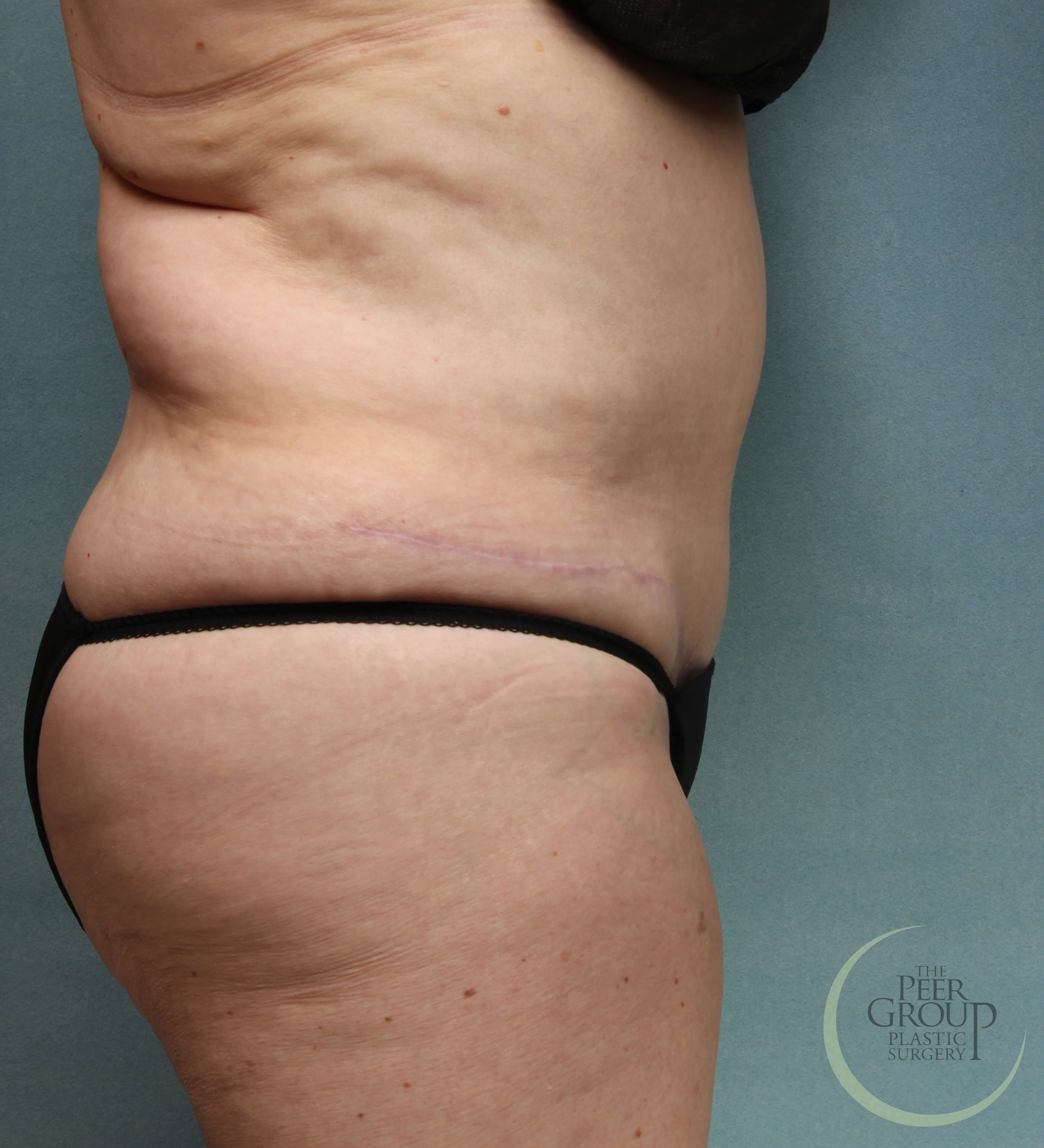 New Jersey Tummy Tuck After