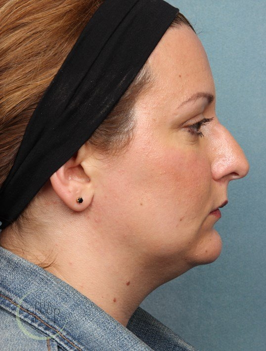 Kybella Chin Fullness Before