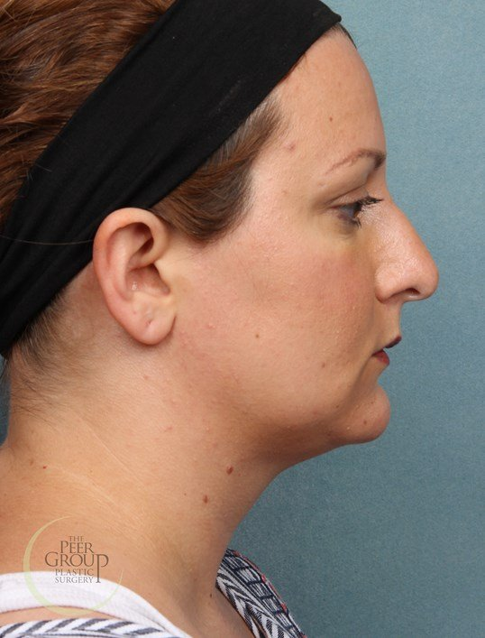 Kybella Chin Fullness After