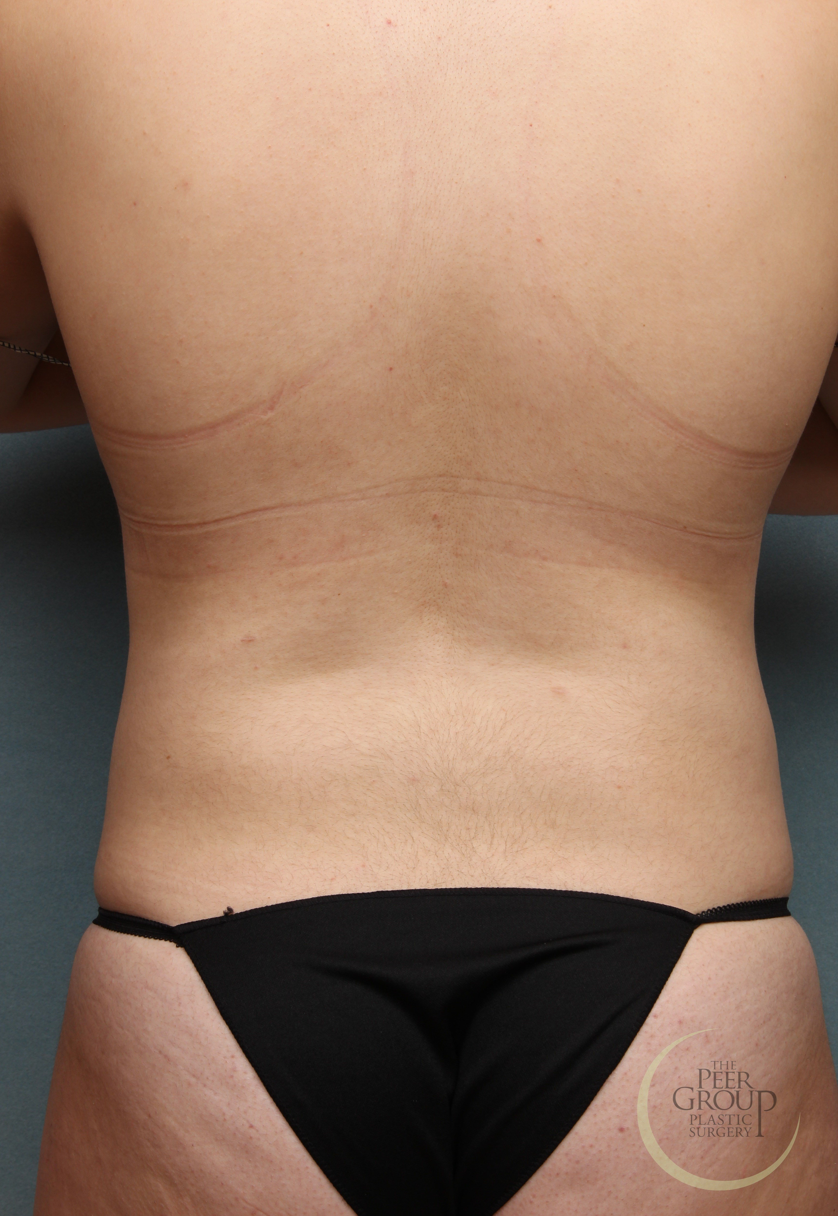 Morristown NJ Liposuction After