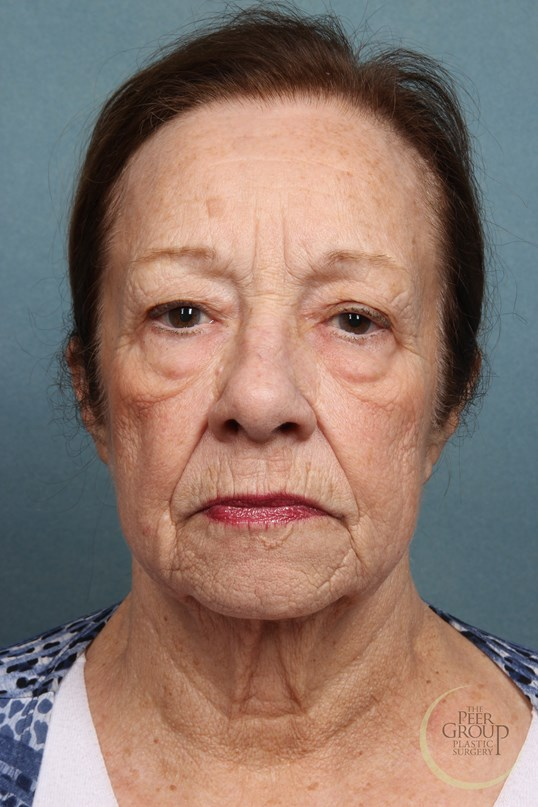 Facial Rejuvenation New Jersey Before