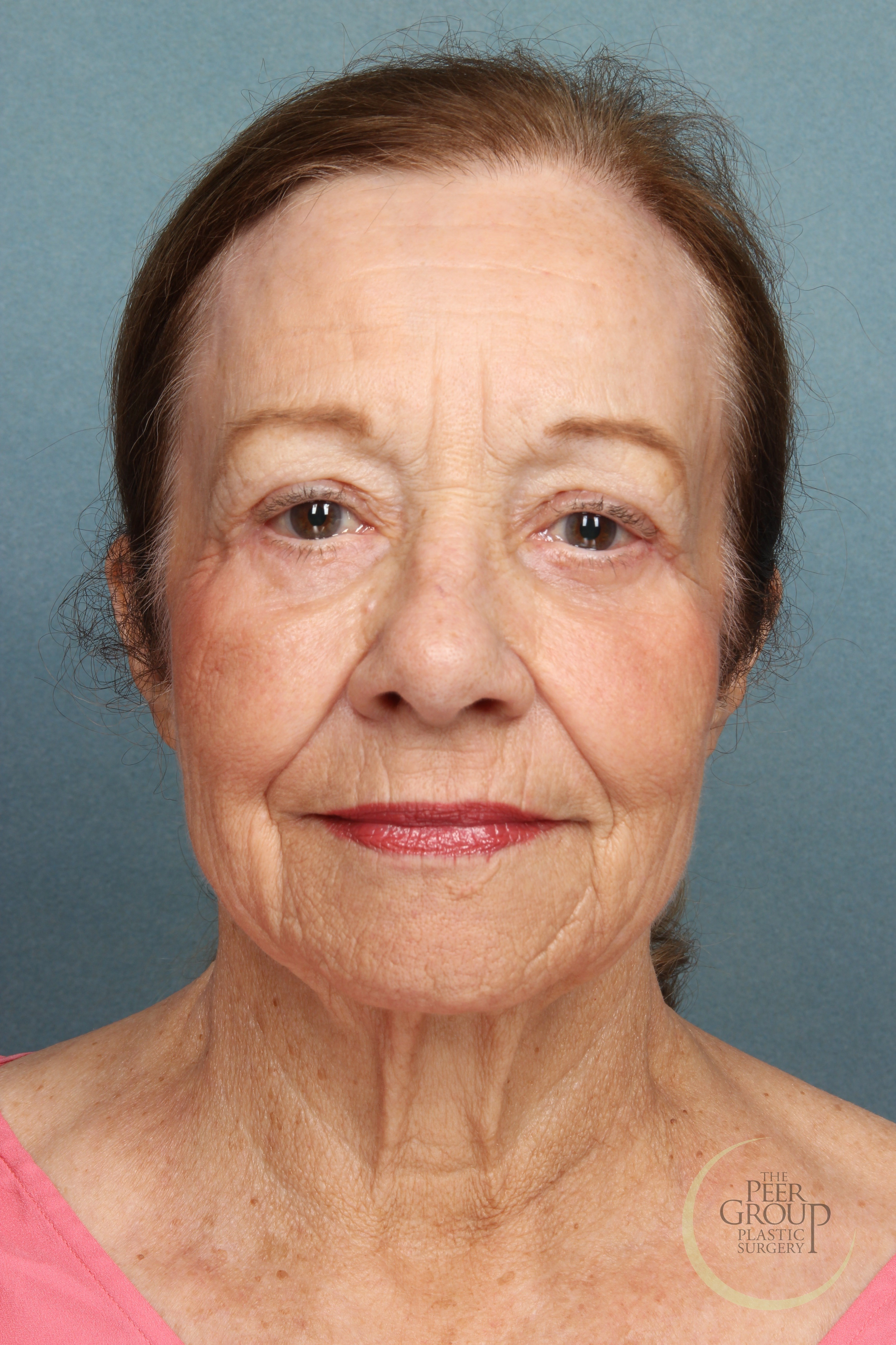 Facial Rejuvenation New Jersey After