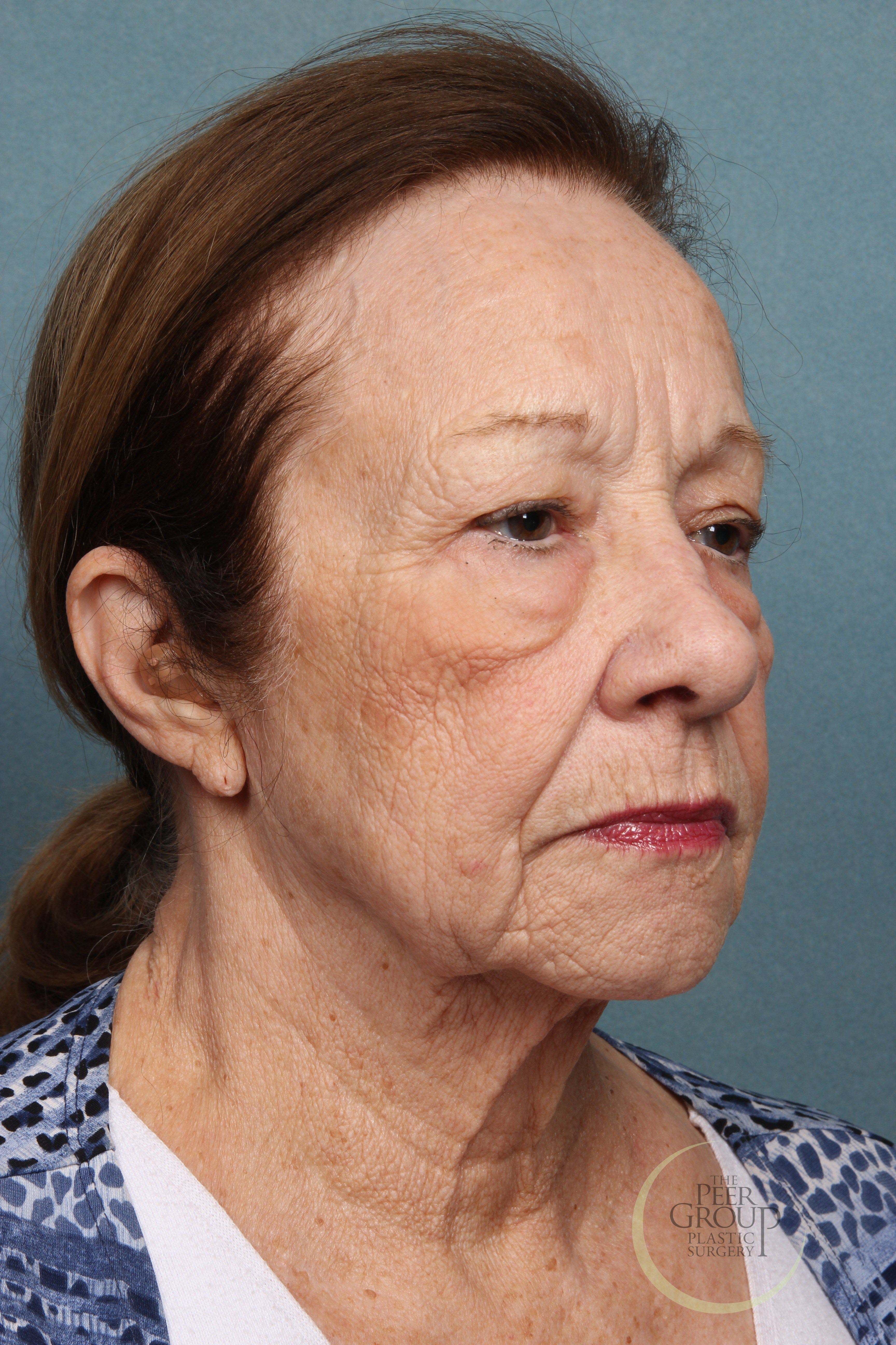 Facial Rejuvenation NJ Before