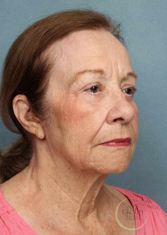 Facial Rejuvenation NJ After