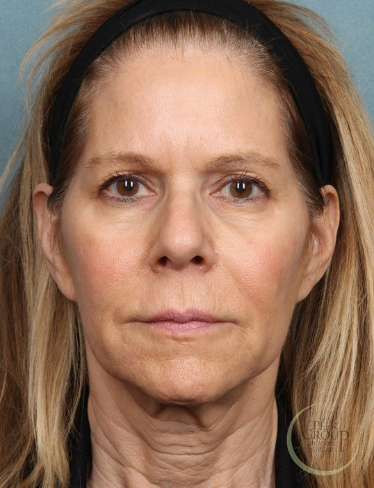 NJ Botox Before