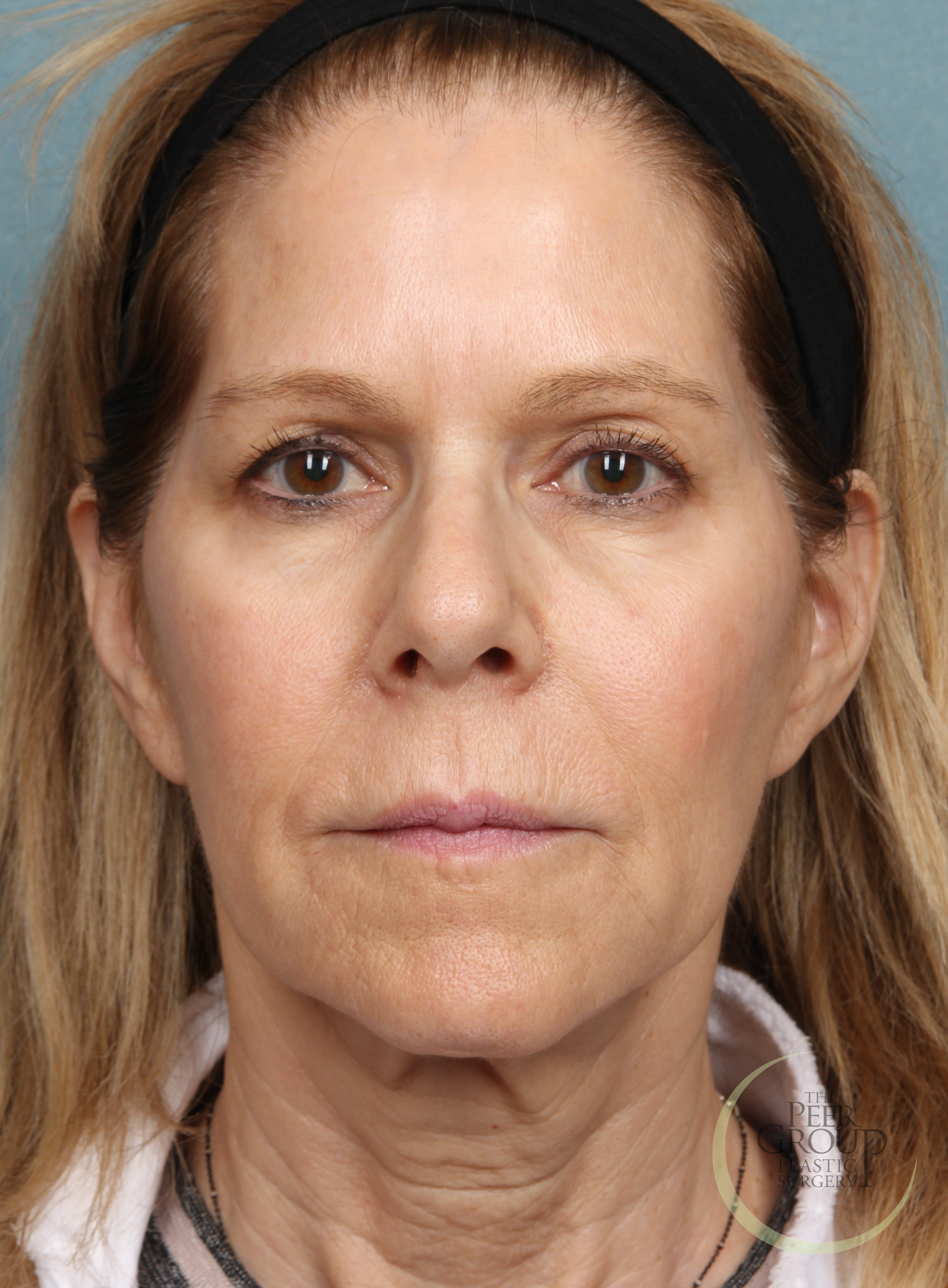 NJ Botox After