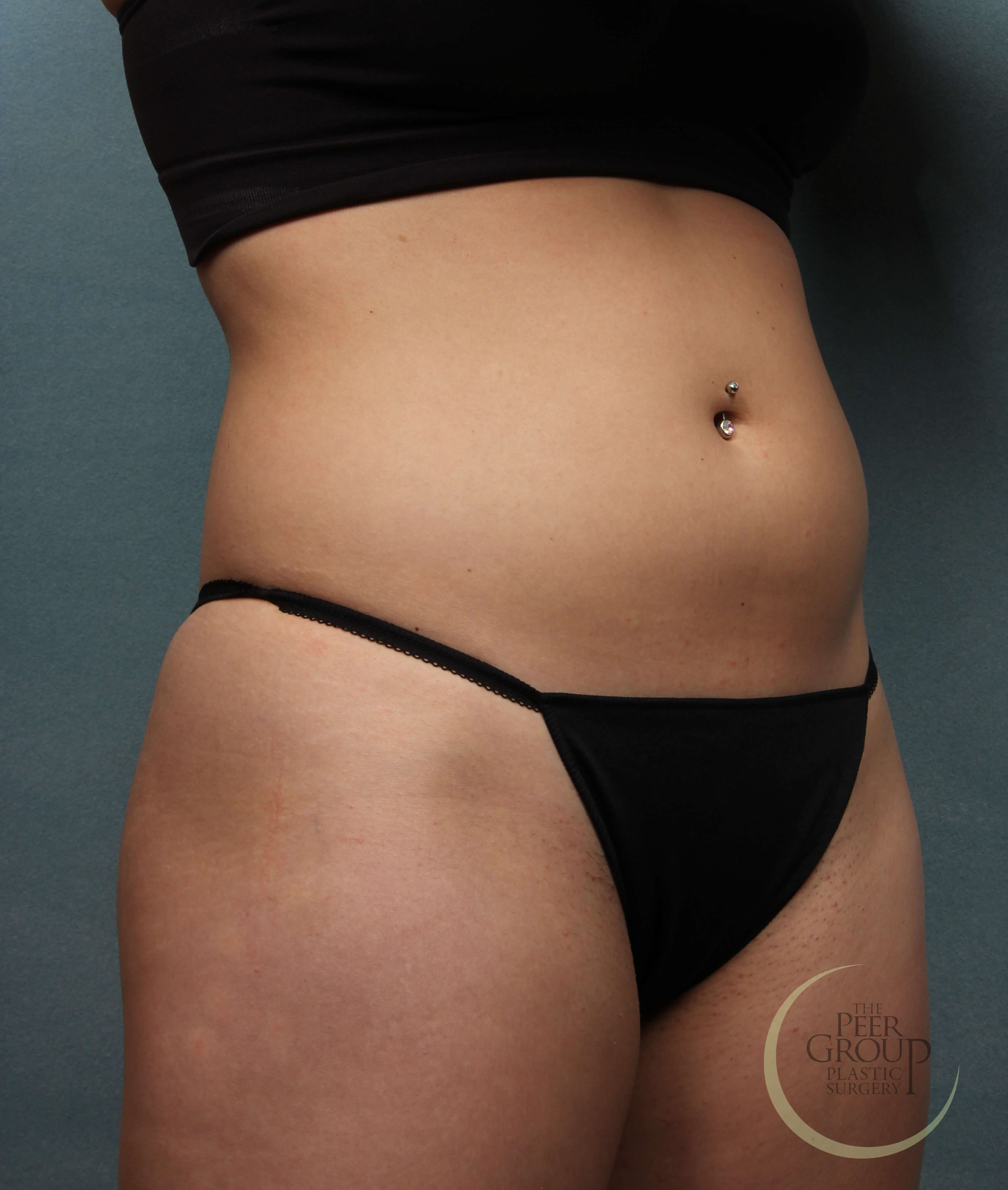 CoolSculpting NJ Before