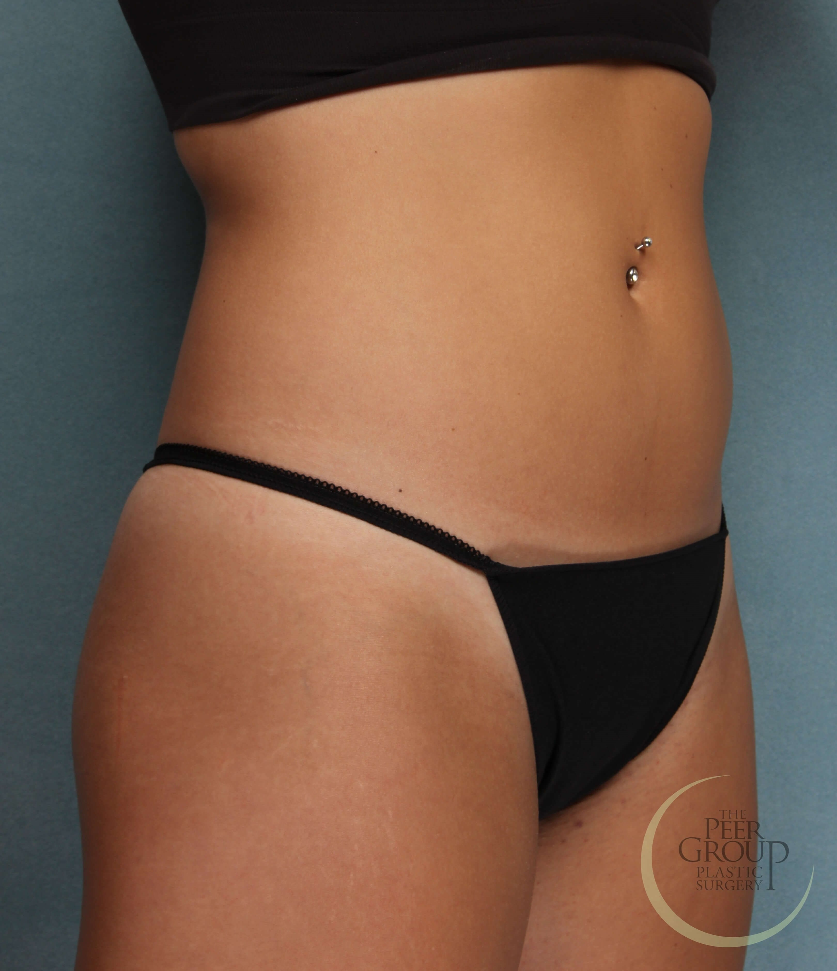 CoolSculpting NJ After