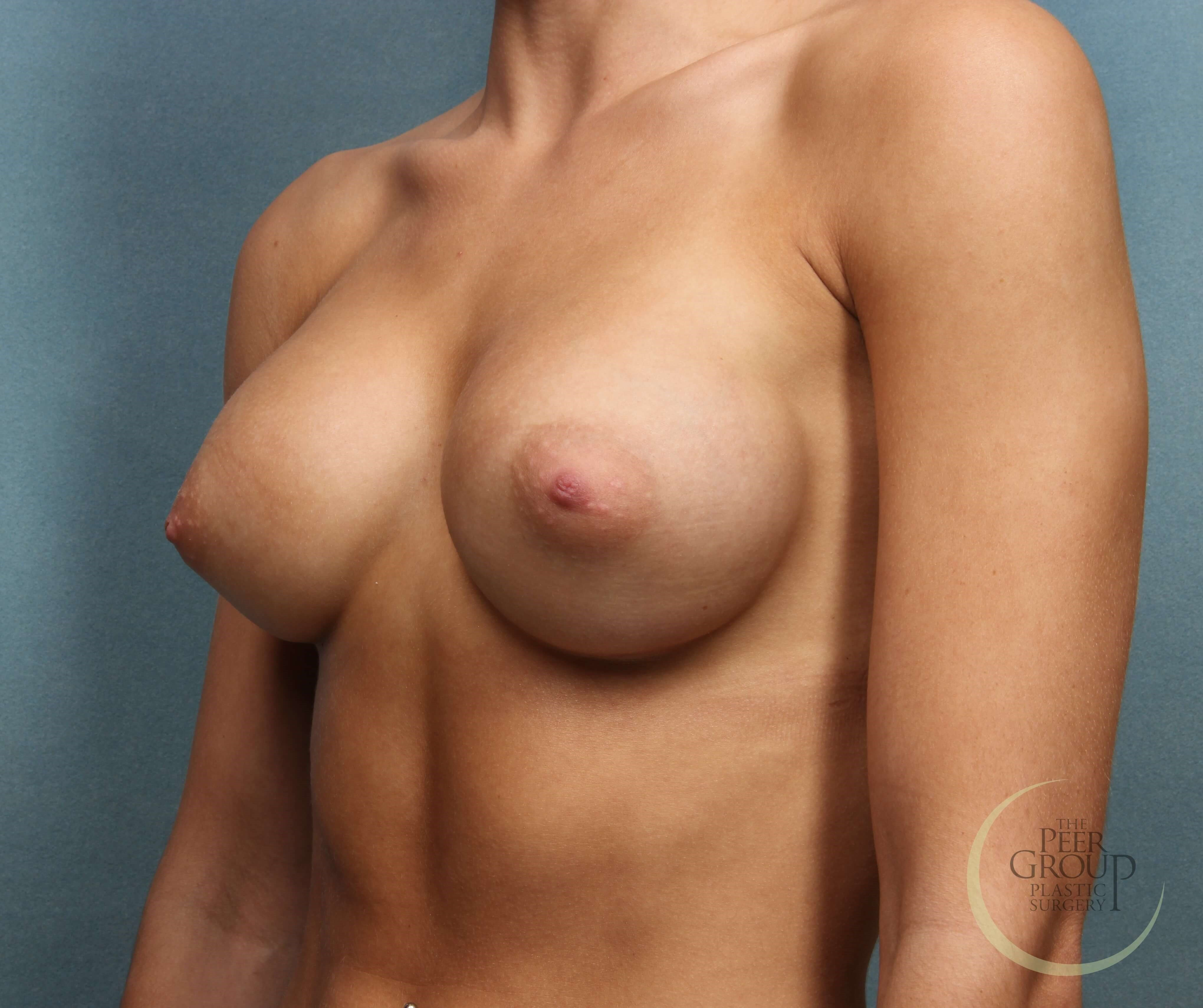 NJ Breast Augmentation After