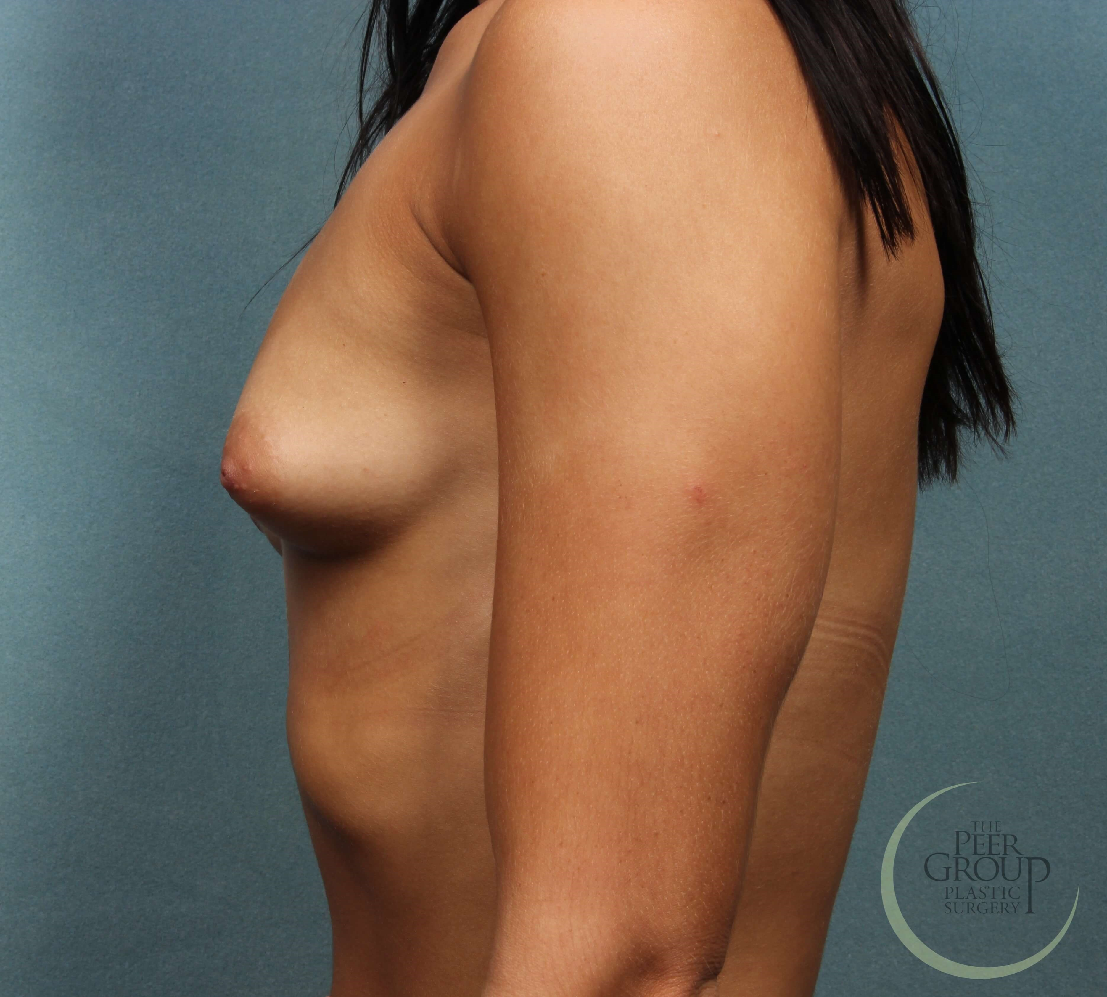 NJ Breast Implants Before