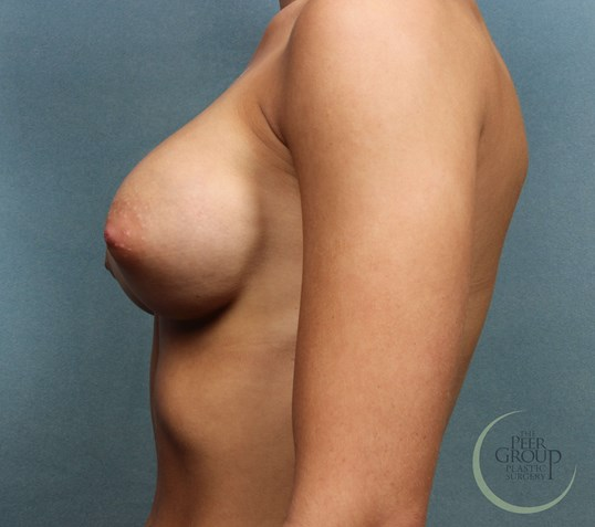 NJ Breast Implants After
