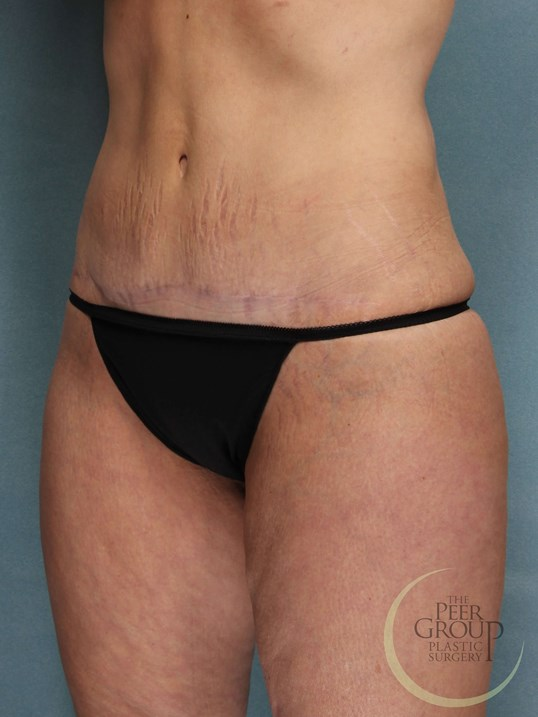 Tummy Tuck New Jersey After