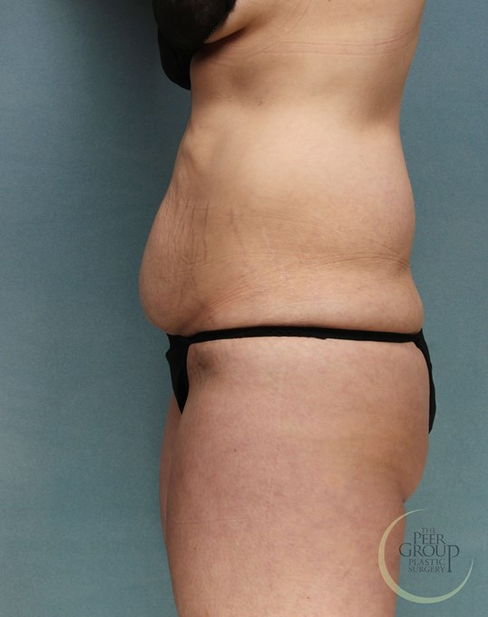 Abdominoplasty NJ Before
