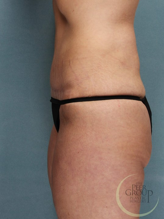 Abdominoplasty NJ After