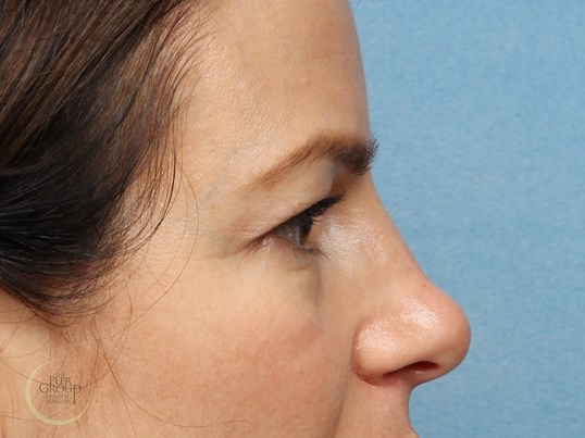 NJ Eyelid Lift Before
