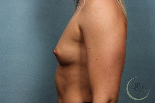 Breast Implants Morris County Before