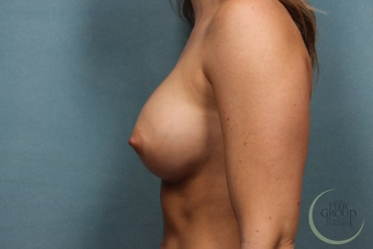 Breast Implants Morris County After