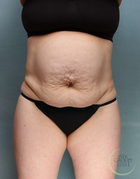 NJ Tummy Tuck Before