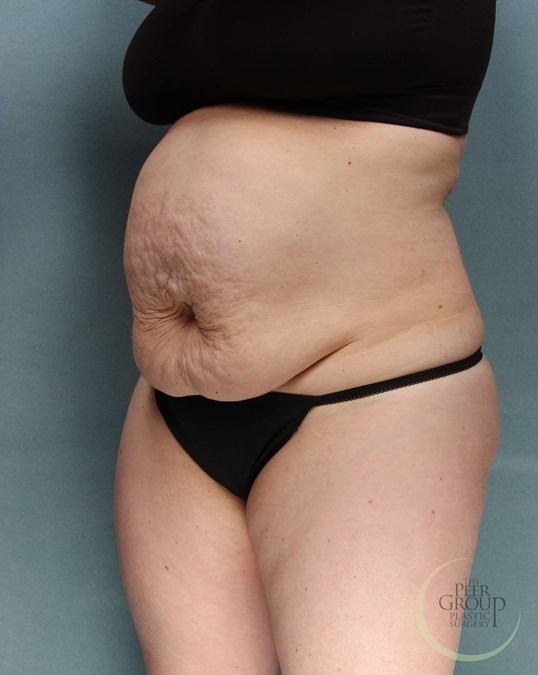 Tummy Tuck NJ Before