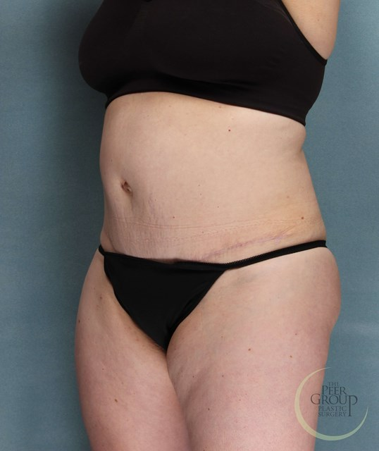 Tummy Tuck NJ After