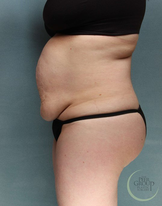 Tummy Tuck Morris County NJ Before