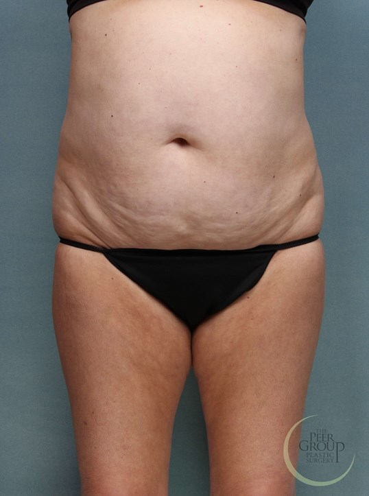 NJ Liposuction and Lipectomy Before