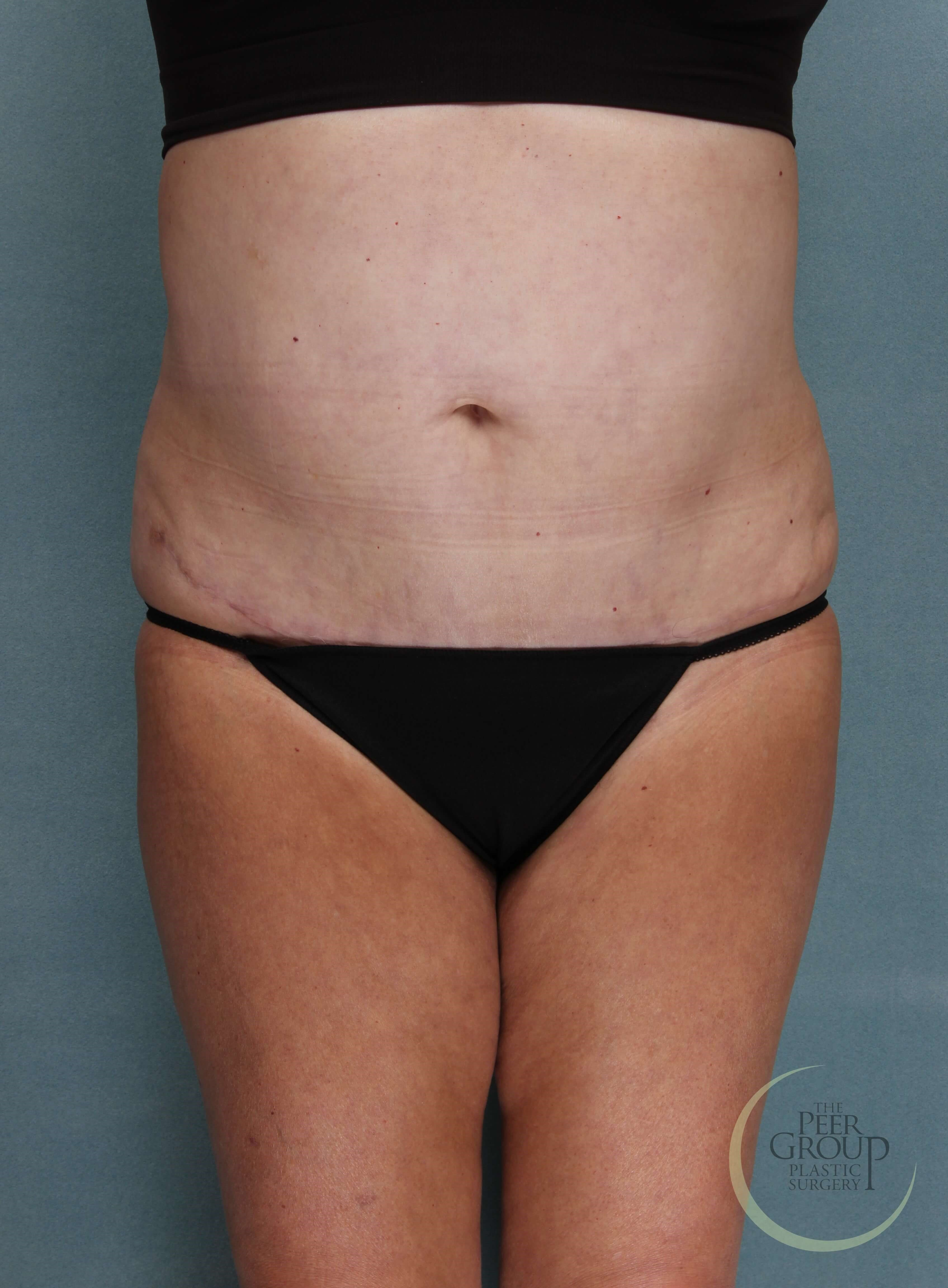 NJ Liposuction and Lipectomy After