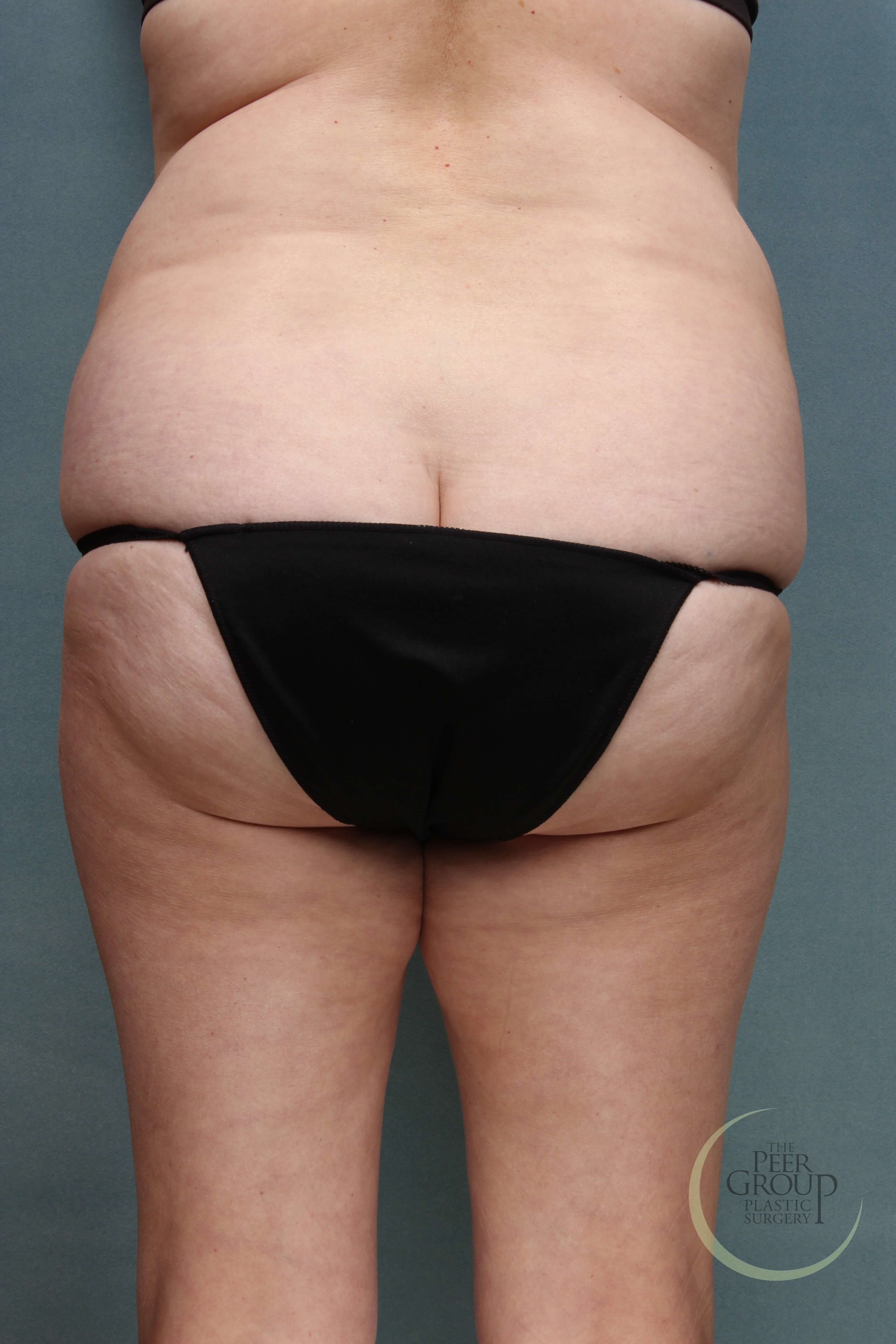 Liposuction New Jersey Before
