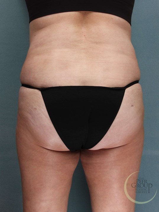 Liposuction New Jersey After